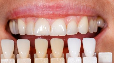 Reasons to consider Dental Veneers by Damascus Dental Group
